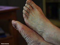 Garry's feet 1