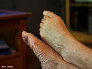 Garry's feet 10